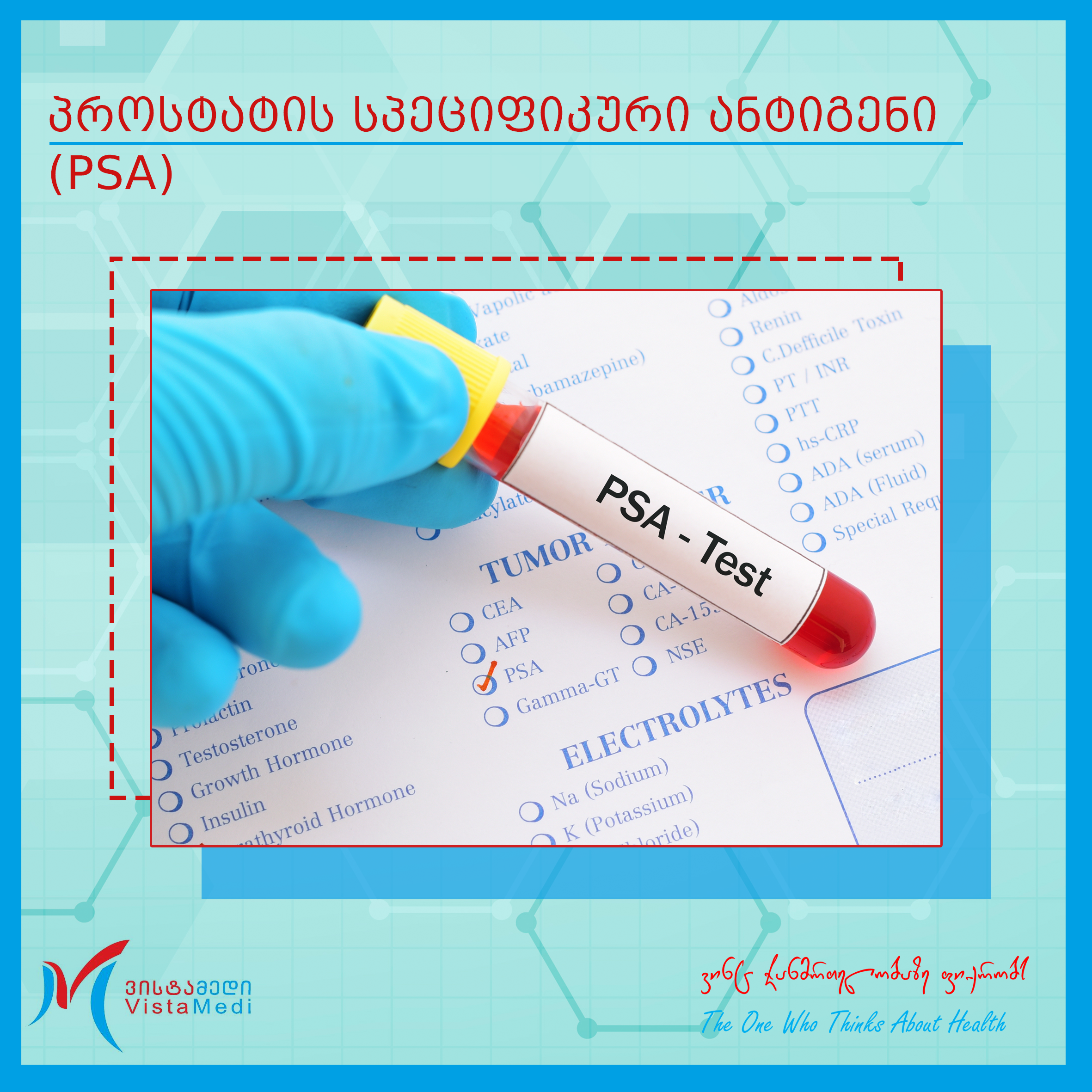 Gamma- gt prostatitis